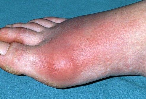 Hiperuricemia (ácido úrico elevado no sangue)