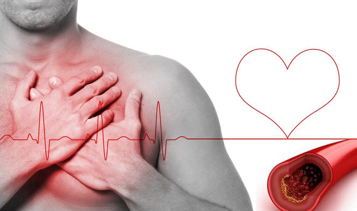 Doença arterial coronariana é a principal causa de morte súbita em atletas com mais de 35 anos