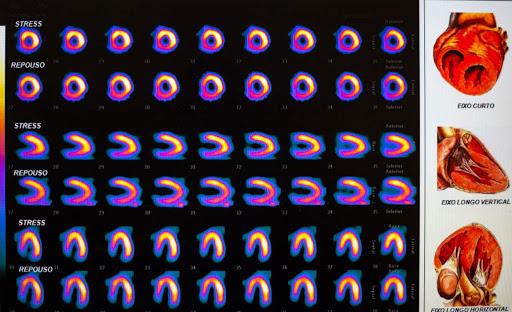 Cintilografia de perfusão miocárdica (repouso e estresse)